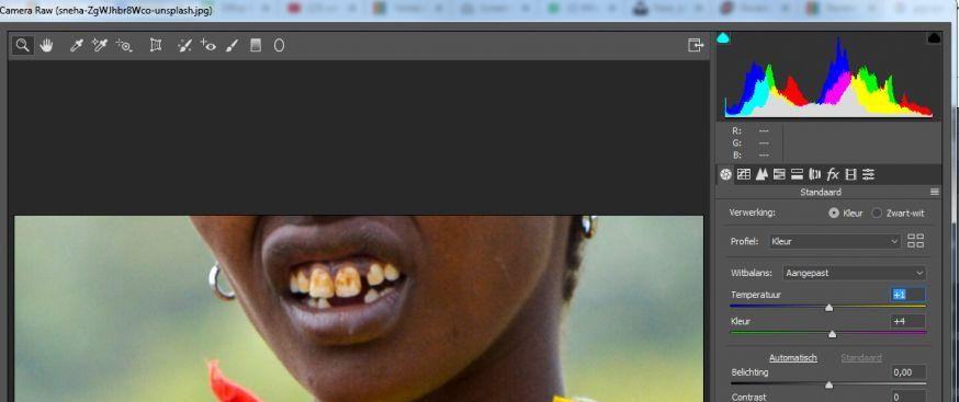 witbalans gebruiken voor perfecte witte tanden
